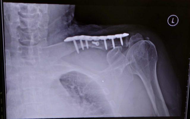 鎖骨骨折 プレート 手術後 レントゲン写真